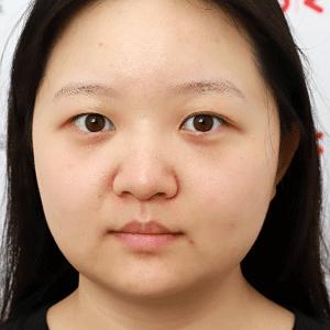 上海九院割双眼皮案例 真人近期案例及新版价格表