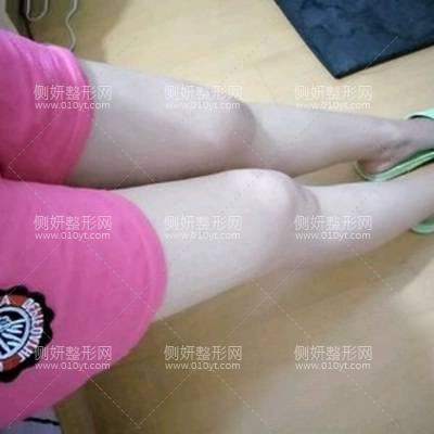 宿州天使医疗美容门诊部腿部吸脂术前术后照片