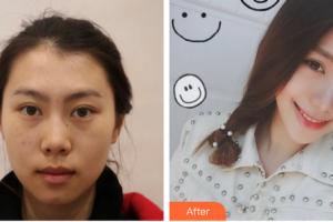 丹东新运医疗美容诊所曲贵明整形价格表附皮肤美容案例展示