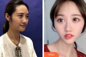 丹东新运医疗美容诊所李炳浍整形价格表附皮肤美容案例展示