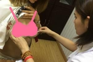 上海交通大学医学院附属第九人民医院整形科修复隆胸效果吃惊