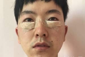 2021上海九院整形科价目表及外切祛眼袋效果展示