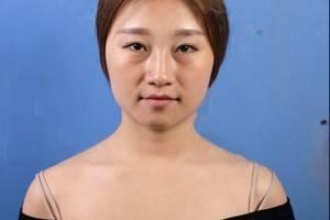 上海九院美容整形价目表 玻尿酸注射苹果肌、法令纹