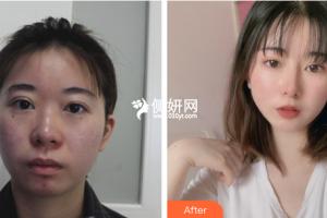 温岭维多利亚整形外科门诊部郑金满整形价格表附隆鼻手术案例展示
