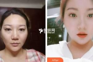 武汉协和医院整形外科刘嘉锋整形价格表附隆鼻手术案例展示
