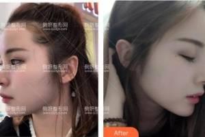 北京中日友好医院整形外科曾高整形医生假体隆鼻怎么样附最新价格表