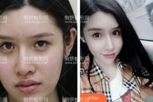 北京新星靓医疗美容医院李伟民面部吸脂怎么样附最新价格表