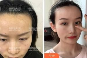 上海第九人民医院整形科上海九院陈付国隆鼻手术怎么样附最新价格表