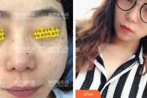 深圳阳光整形美容医院陈瑞红皮肤美容怎么样附最新价格表