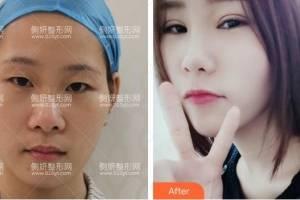 深圳米兰柏羽医疗美容医院朱武根全切双眼皮怎么样附最新价格表