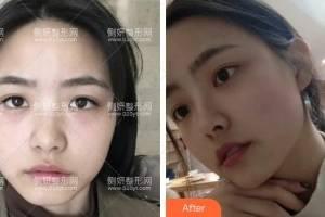 深圳蒳美迩医疗美容医院朱灿假体隆鼻怎么样附最新价格表