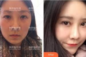 深圳广和整形美容医院尹卫民隆鼻手术怎么样附最新价格表