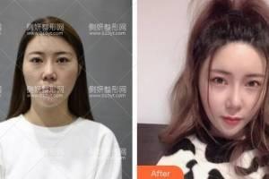 深圳非凡医疗美容医院罗奇医生下颌角手术怎么样附最新价格表