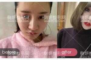 河北医科大学第二医院整形美容科苏晓光鼻综合怎么样附最新价格表