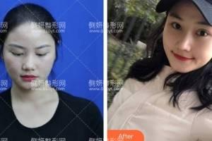 上海交通大学医学院附属第九人民医院整形外科戴传昌假体隆鼻怎么样附最新价格表