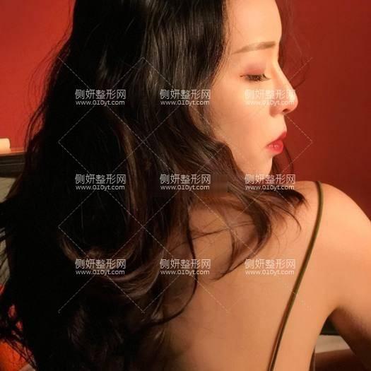 上海伊莱美第几名  双眼皮案例多图分享及价格表