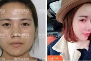 安徽省立医院整形美容科赵李平双眼皮手术怎么样附最新价格表