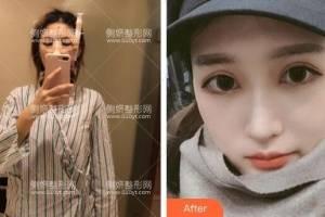 安徽省立医院整形美容科杜晓杨隆鼻手术怎么样附最新价格表