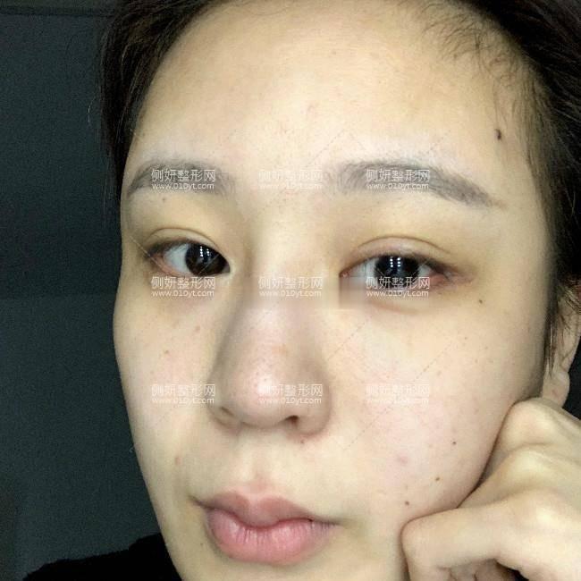 中山人民医院美容科隆鼻多少钱?附隆鼻手术过程分享及案例展示