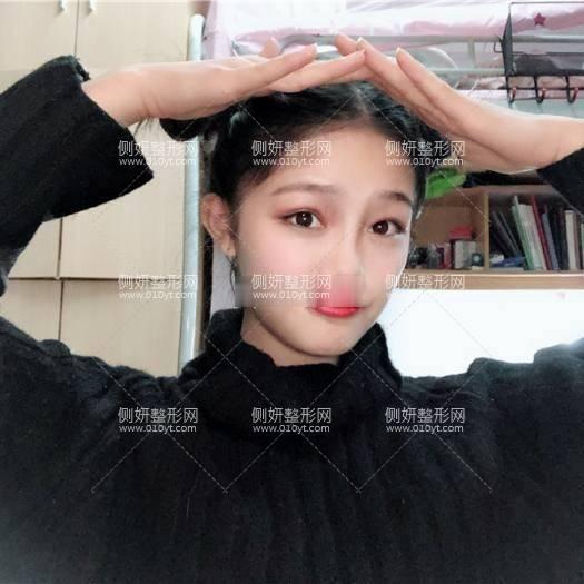 徐州第一人民医院整形科怎么样?附自体脂肪隆鼻案例展示