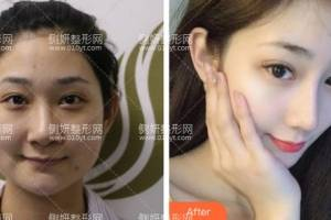青岛大学附属医院医学美容中心匡瑞霞肋软骨隆鼻怎么样附最新价格表
