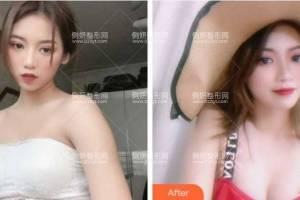 西安高一生医疗美容医院金磊假体隆胸怎么样附最新价格表