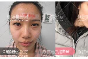 杭州美莱整形医院高士乾双眼皮手术怎么样附最新价格表