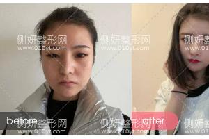 杭州维多利亚整形医院刘中策医生全切双眼皮怎么样附最新价格表