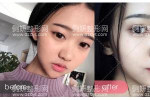 杭州维多利亚整形医院俞国宝全切双眼皮怎么样附最新价格表