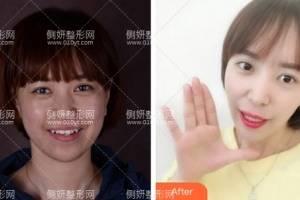 上海第九人民医院整形外科张富强牙齿矫正怎么样附最新价格表