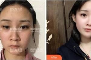 潍坊医学院整形外科牟少春假体隆鼻怎么样附最新价格表