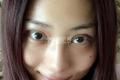 齐鲁医院双眼皮专家_术后恢复日记及整形费用在线预览