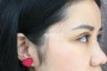 湖南省人民医院整形科双眼皮费用_专家案例参考/技术风格