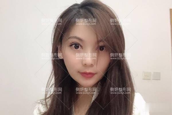上海百达丽医疗美容怎么样?附割双眼皮前后对比案例效果