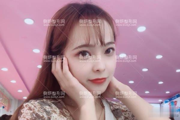 香港大学深圳医院割双眼皮怎么样?案例日记分享