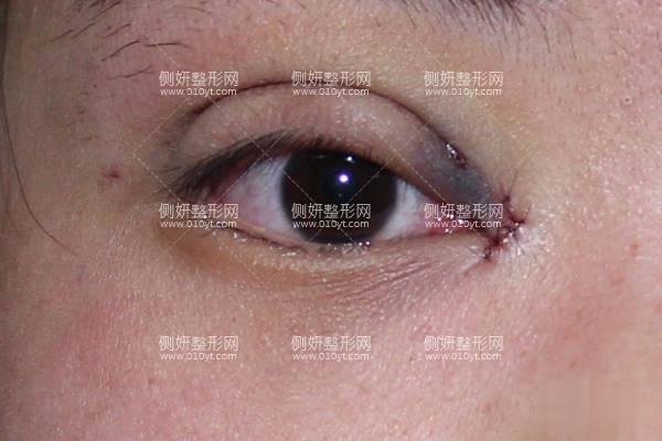 清华玉泉医院是三甲吗?附双眼皮案例分享及价格表