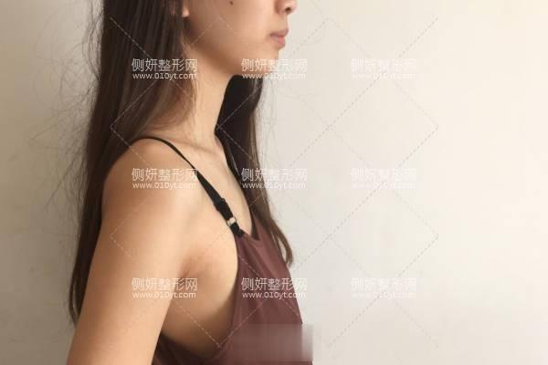 河北省二院整形美容科自体脂肪隆胸真人实拍案例展示 附价格一览