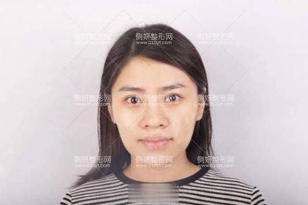 润美玉之光医院正规吗?附假体隆鼻案例展示及价格表