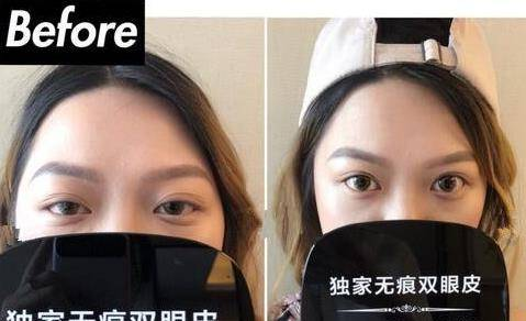 上海九院董佳生割双眼皮真实案例分享一波!看了一定不后悔!
