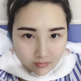 北京冯斌院长水动力面部吸脂瘦脸半个月案例