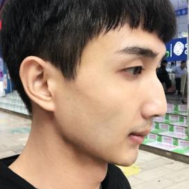 北京华韩医院下颌角手术价格49000元