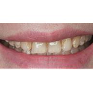 牙齿冷光美白&洗牙前后对比图案例【价格】