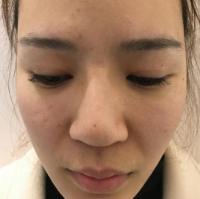 隆鼻4年鼻子歪了做隆鼻修复价格1.6w