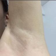 上海医院激光脱腋毛价格对比照