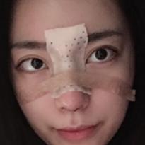 美联臣医院鼻综合修复价格照片
