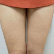 抽脂瘦大腿价格13k管用瘦了