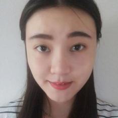 北京延世膨体隆鼻割双眼皮价格照片