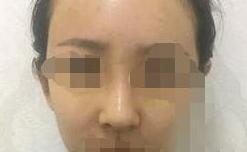 硅胶假体做隆鼻效果如何?蛮好的