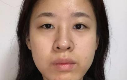脸大去医院打肉毒杆菌,结果做了面部吸脂