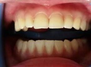 美联臣医院牙齿冷光美白有用价格不贵